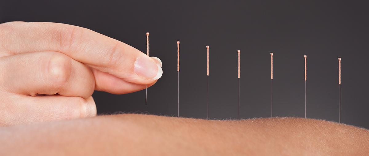 acupuntura medica y artrosis