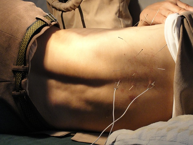 acupuncture-3275458_640